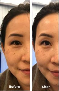 Before and After photo of my face after using Nu Skin Galvanic Spa for the first time.