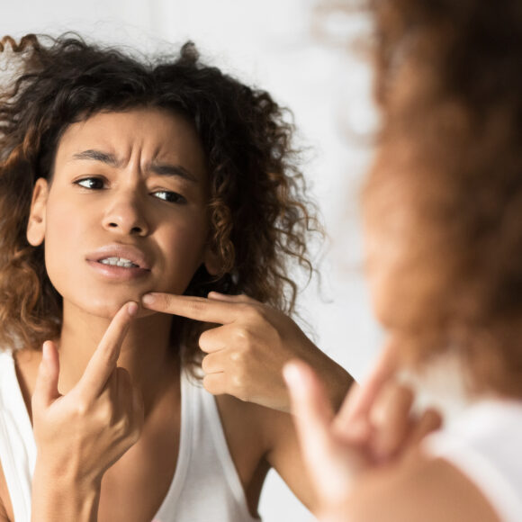 Can acne be caused by stress?